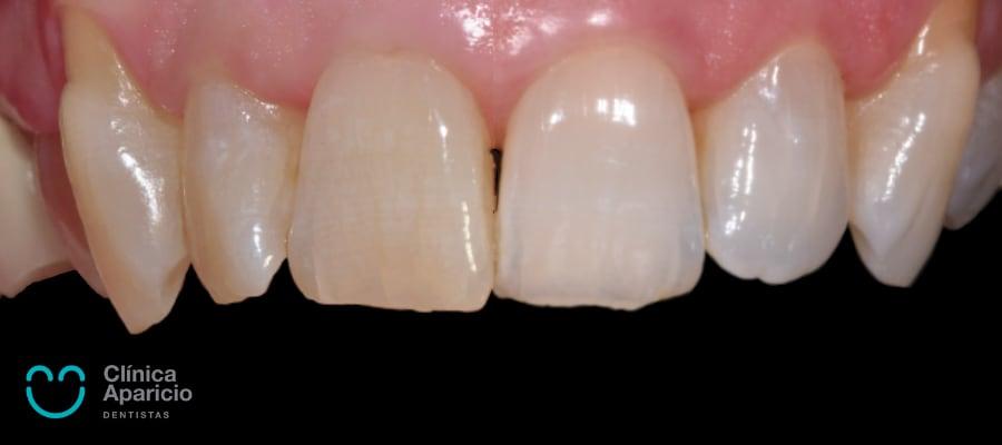 blanqueamiento dental antes y despues tenerife