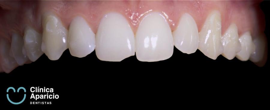 como-se-mueven-los-dientes-con-Invisalign
